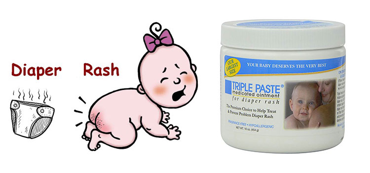 Triple Paste Medicated Ointment for Diaper Rash 16-Ounce Review